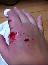 フェレット 噛む 痛い 血
